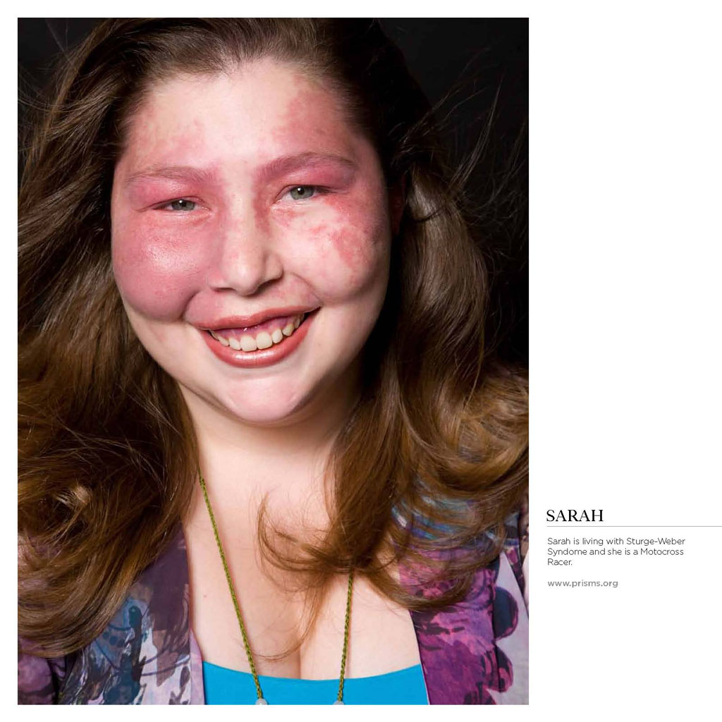 Waardenburg Syndrome Exhibitions | Positive...