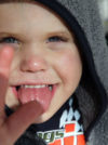 Smith-Magenis Syndrome: (prisms.org)
