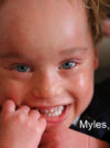 Types of Ichthyosis 1/13